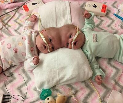 ABD'de siyam ikizleri ameliyatla birbirinden ayrıldı