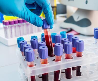 Yumurtalık rezervi ölçümünde kan testi yeterli mi?