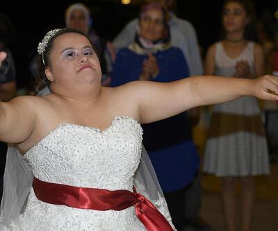 Down sendromlu Ebru'nun düğün hayali gerçek oldu