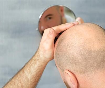 Saç ekimi teknikleri nelerdir? Farkları neler?