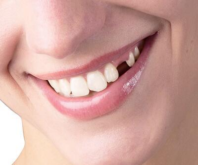 Dişlerdeki kırık problemine dikkat
