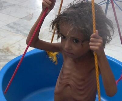821 milyon insan açlıkla boğuşuyor