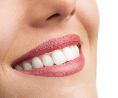 İşte diş taşlarından kurtaracak doğan çözüm!