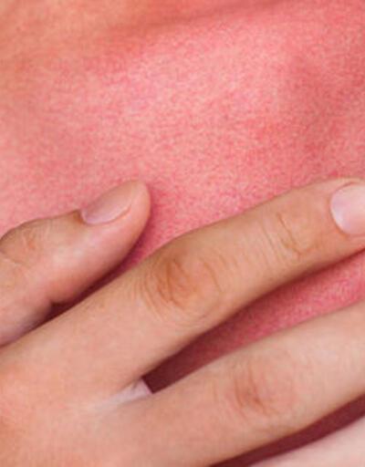 Güneş yanığına ne iyi gelir? İşte güneş yanığı tedavisi