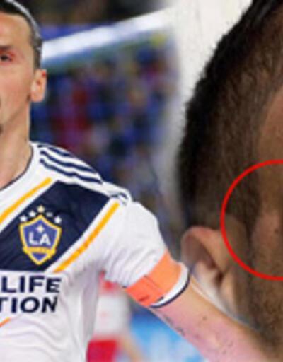 Ibrahimovic rakibini hastanelik etti