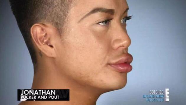 Estetik bağımlılığı yüzünden dudakları bile kapanmıyor!