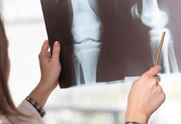 Kemik sağlığınız için muz tüketin