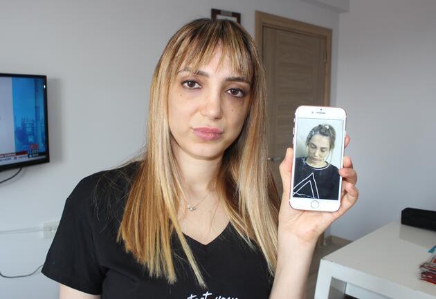Estetik mağduru kadının yüzü tanınmaz hale geldi