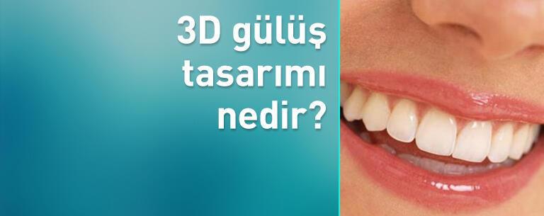 3D gülüş tasarımı nedir?
