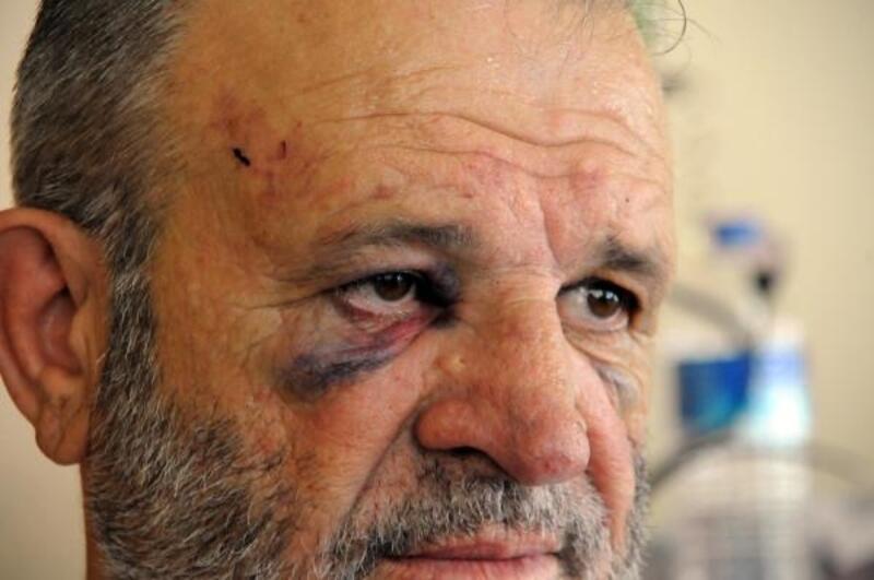 Ücretini isteyen avukat tekme tokat dövüldü