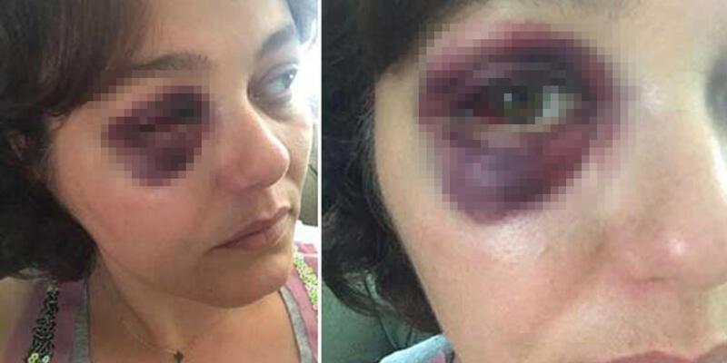 Kadıköy'de restoranda kadına yumruk atan sanığa ceza