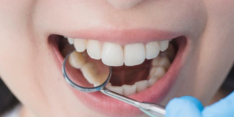 Ortodontide tedavi süresi kısalıyor