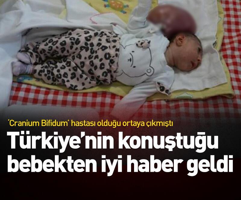 Son dakika: Elif bebek taburcu edildi