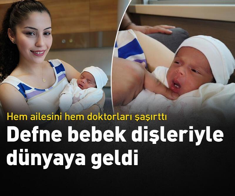 Son dakika: Defne bebek dişleriyle dünyaya geldi