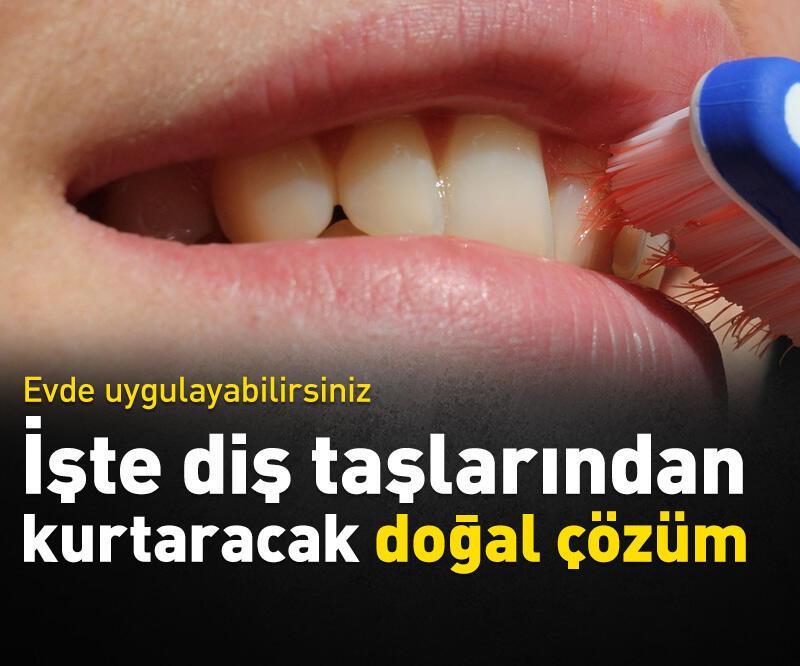Son dakika: İşte diş taşlarından kurtaracak doğan çözüm!